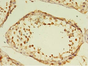 Immunohistochemistry (Formalin/PFA-fixed paraffin-embedded sections) - Anti-GRK4 antibody (ab236645)