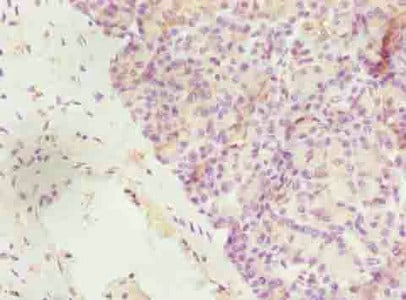 Immunohistochemistry (Formalin/PFA-fixed paraffin-embedded sections) - Anti-FIBP antibody (ab236647)