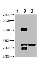 Immunoprecipitation - Anti-TPMT antibody (ab236648)