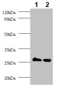 Western blot - Anti-TPMT antibody (ab236648)