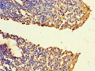 Immunohistochemistry (Formalin/PFA-fixed paraffin-embedded sections) - Anti-FNTB antibody (ab236649)