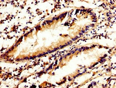 Immunohistochemistry (Formalin/PFA-fixed paraffin-embedded sections) - Anti-Calpain 2 antibody (ab236650)