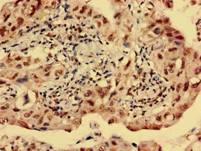 Immunohistochemistry (Formalin/PFA-fixed paraffin-embedded sections) - Anti-S31 antibody (ab236651)