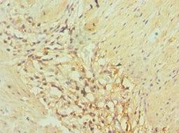 Immunohistochemistry (Formalin/PFA-fixed paraffin-embedded sections) - Anti-AKR1C3 antibody (ab236656)