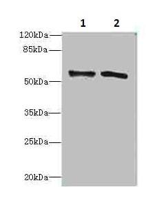Western blot - Anti-Alanine Transaminase antibody (ab236658)