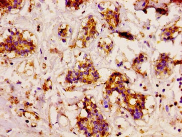 Immunohistochemistry (Formalin/PFA-fixed paraffin-embedded sections) - Anti-CAST antibody (ab236662)