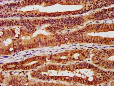 Immunohistochemistry (Formalin/PFA-fixed paraffin-embedded sections) - Anti-CSNK2A1 antibody (ab236664)