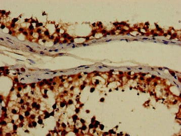 Immunohistochemistry (Formalin/PFA-fixed paraffin-embedded sections) - Anti-GRHPR antibody (ab236665)