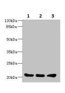 Western blot - Anti-PLLP antibody (ab236668)