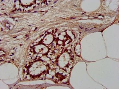 Immunohistochemistry (Formalin/PFA-fixed paraffin-embedded sections) - Anti-CLCNKB antibody (ab236733)