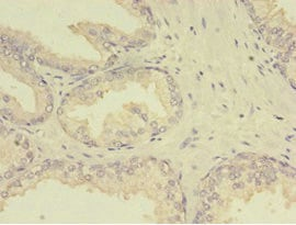Immunohistochemistry (Formalin/PFA-fixed paraffin-embedded sections) - Anti-MTHFR antibody (ab236737)