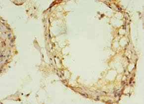Immunohistochemistry (Formalin/PFA-fixed paraffin-embedded sections) - Anti-MAPK 13 antibody (ab236738)