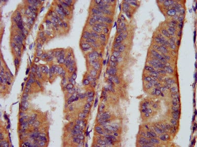 Immunohistochemistry (Formalin/PFA-fixed paraffin-embedded sections) - Anti-CHRNB3 antibody (ab236745)