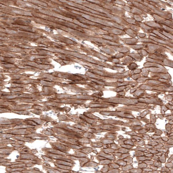 Immunohistochemistry (Formalin/PFA-fixed paraffin-embedded sections) - Anti-Laminin 2 alpha antibody [CL3450] (ab236762)