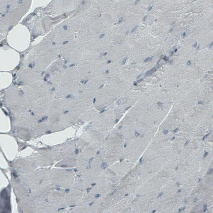 Immunohistochemistry (Formalin/PFA-fixed paraffin-embedded sections) - Anti-PHGDH/Malate dehydrogenase antibody [CL0555] (ab236763)