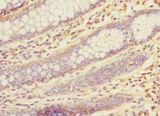 Immunohistochemistry (Formalin/PFA-fixed paraffin-embedded sections) - Anti-ketohexokinase antibody (ab236768)