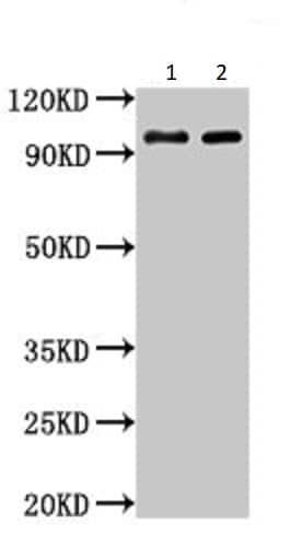 Western blot - Anti-Aconitase 1/ACO1 antibody (ab236773)