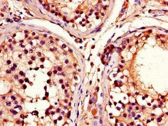 Immunohistochemistry (Formalin/PFA-fixed paraffin-embedded sections) - Anti-ADRM1/ARM-1 antibody (ab236774)