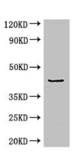 Western blot - Anti-ADRM1/ARM-1 antibody (ab236774)