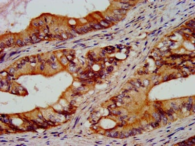 Immunohistochemistry (Formalin/PFA-fixed paraffin-embedded sections) - Anti-RGS6 antibody (ab236787)