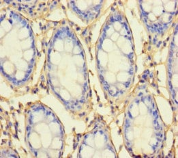 Immunohistochemistry (Formalin/PFA-fixed paraffin-embedded sections) - Anti-RRP2 antibody (ab236793)