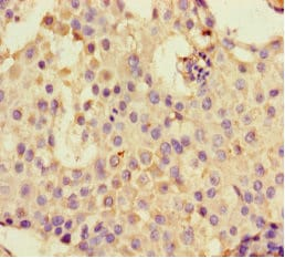 Immunohistochemistry (Formalin/PFA-fixed paraffin-embedded sections) - Anti-DHX33 antibody (ab236794)