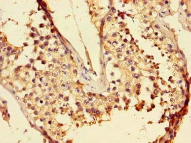 Immunohistochemistry (Formalin/PFA-fixed paraffin-embedded sections) - Anti-LZTFL1 antibody (ab236795)