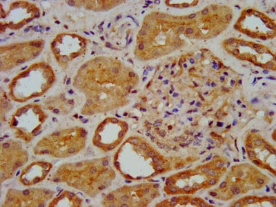 Immunohistochemistry (Formalin/PFA-fixed paraffin-embedded sections) - Anti-KAT9 / Elp3 antibody (ab236800)