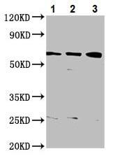 Western blot - Anti-KAT9 / Elp3 antibody (ab236800)