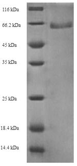 SDS-PAGE - Recombinant GV51_0914 protein (His tag) (ab236801)