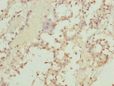 Immunohistochemistry (Formalin/PFA-fixed paraffin-embedded sections) - Anti-TMEM19 antibody (ab236852)