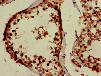 Immunohistochemistry (Formalin/PFA-fixed paraffin-embedded sections) - Anti-PPOX antibody (ab236853)