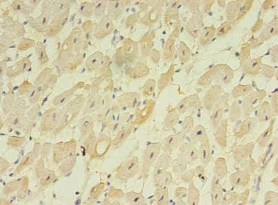 Immunohistochemistry (Formalin/PFA-fixed paraffin-embedded sections) - Anti-TM222 antibody (ab236856)