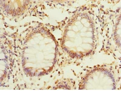 Immunohistochemistry (Formalin/PFA-fixed paraffin-embedded sections) - Anti-PPAP2C antibody (ab236857)