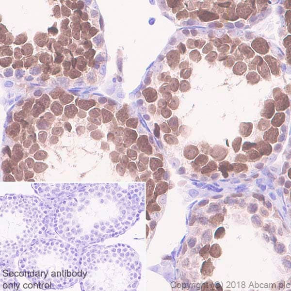 Immunohistochemistry (Formalin/PFA-fixed paraffin-embedded sections) - Anti-PBK/SPK antibody [EPR21983] (ab236872)