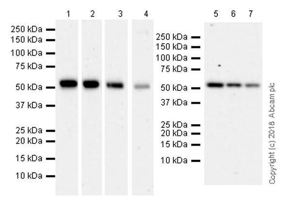 Western blot - Anti-Visfatin antibody [EPR21984] (ab236873)