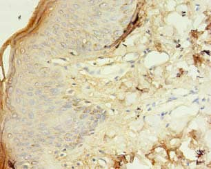 Immunohistochemistry (Formalin/PFA-fixed paraffin-embedded sections) - Anti-TSPAN6 antibody (ab236883)