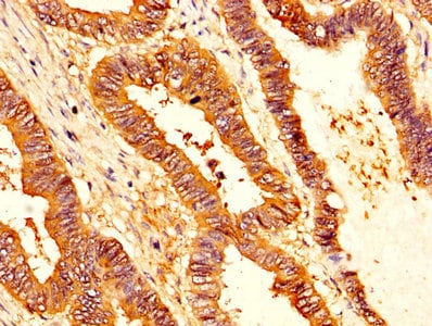 Immunohistochemistry (Formalin/PFA-fixed paraffin-embedded sections) - Anti-SERPINB1/PI2 antibody (ab236890)