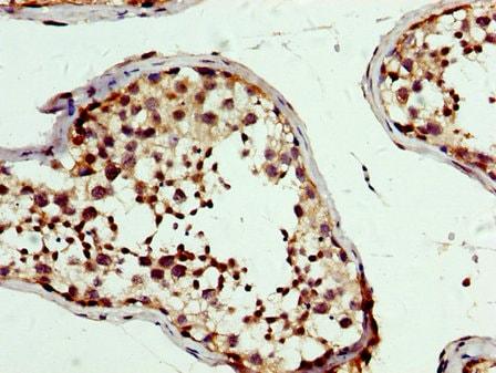 Immunohistochemistry (Formalin/PFA-fixed paraffin-embedded sections) - Anti-PBX1/PRL antibody (ab236911)