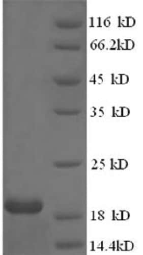 SDS-PAGE - Recombinant Human papillomavirus HPV18 E7 protein (His tag) (ab236931)