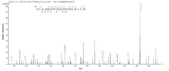 Mass Spectrometry - Recombinant Staphylococcus aureus Exfoliative Toxin A/ETA protein (His tag) (ab236933)