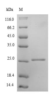 SDS-PAGE - Recombinant Human Peroxiredoxin 2/PRP protein (His tag) (ab236937)