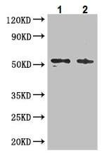 Western blot - Anti-C22orf28 antibody (ab236946)