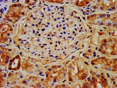 Immunohistochemistry (Formalin/PFA-fixed paraffin-embedded sections) - Anti-NAA38 antibody (ab236965)