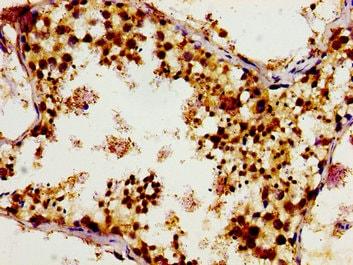 Immunohistochemistry (Formalin/PFA-fixed paraffin-embedded sections) - Anti-GCP4 antibody (ab236971)