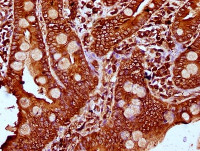 Immunohistochemistry (Formalin/PFA-fixed paraffin-embedded sections) - Anti-PLS1 antibody (ab236976)
