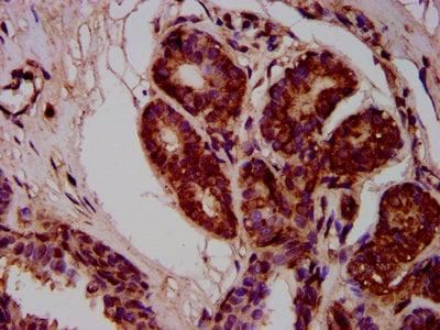 Immunohistochemistry (Formalin/PFA-fixed paraffin-embedded sections) - Anti-MOV10L1/Champ antibody (ab236977)