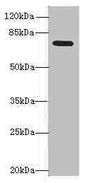 Western blot - Anti-NAALADL2 antibody (ab236991)