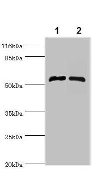 Western blot - Anti-CYPIVF11 antibody (ab236994)