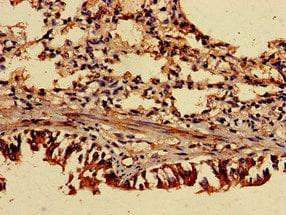 Immunohistochemistry (Formalin/PFA-fixed paraffin-embedded sections) - Anti-ASC1 antibody (ab236996)
